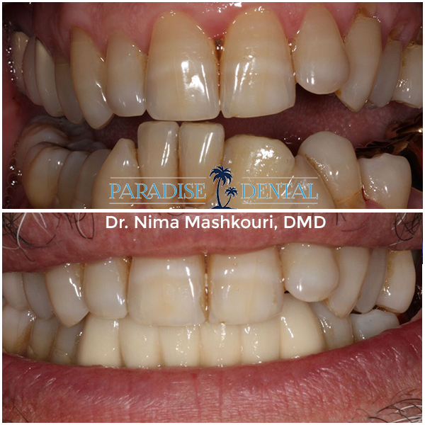 Restorative Dentistry Before & After in Santa Monica