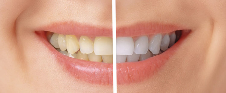 Teeth Whitening Santa Monica Non Invasive Laser Teeth Bleaching